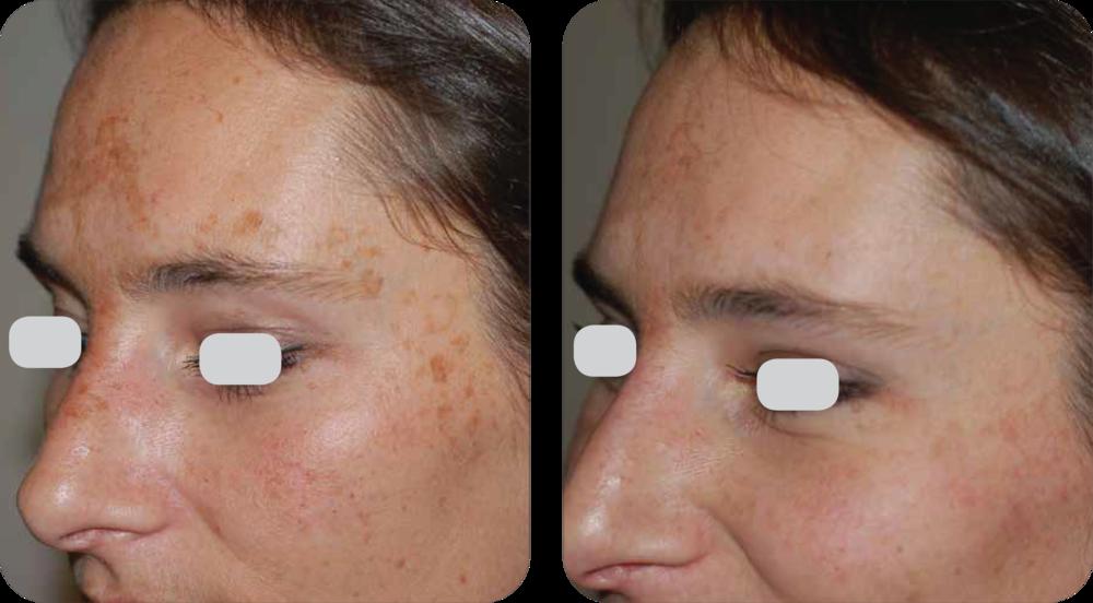 cosmetic dermatology near me