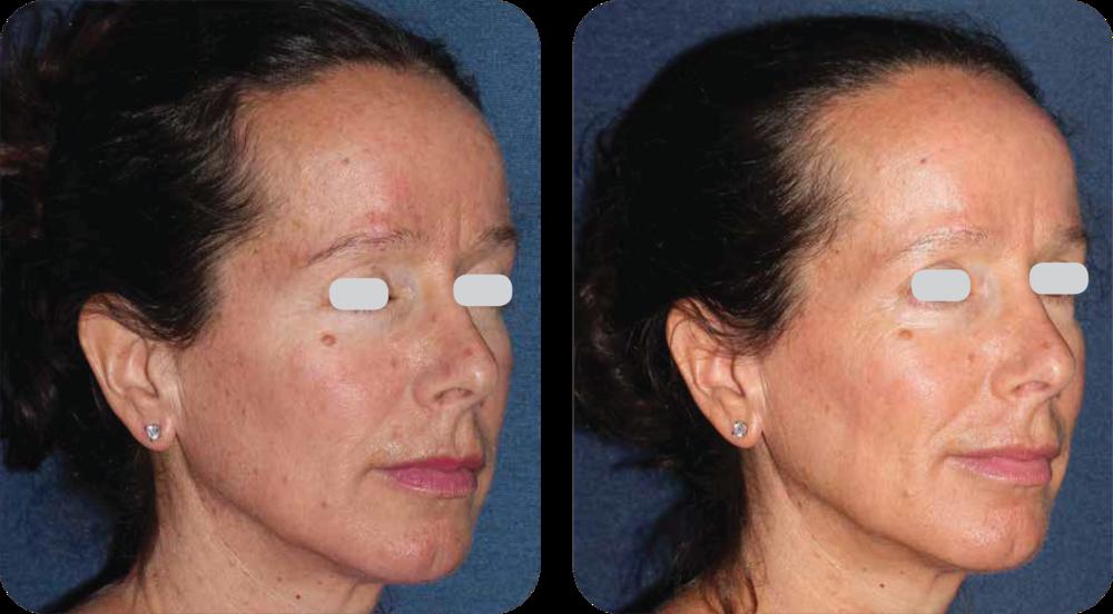 skin specialist, cosmetic dermatology