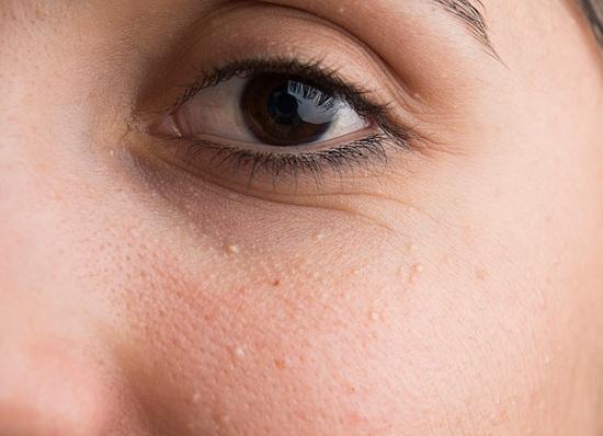 Milia Benign Lesion Removal Dermatology