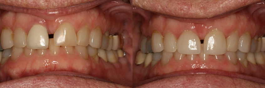 Before and After Dental Crowns and Dental Veneers Photos from West Ridgewood Dental Professionals in Bergen County NJ