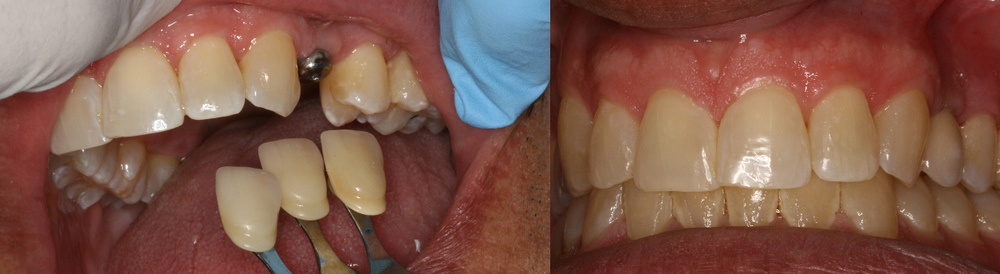 Before and After Dental Implant abutment and dental Crown Photos from West Ridgewood Dental Professionals in Bergen County NJ