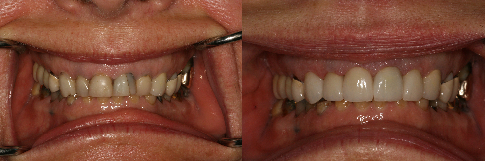 Before and After All Porcelain Ceramic Dental Crown Procedure Photos from West Ridgewood Dental Professionals in Bergen County NJ