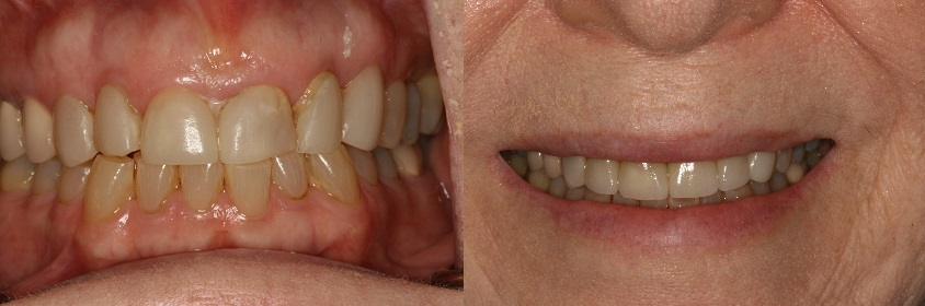 Before and After Porcelain Crowns Chipped Tooth Photos from West Ridgewood Dental Professionals in Bergen County NJ