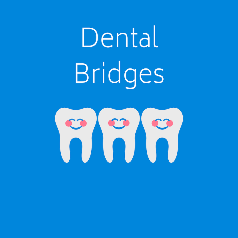 Dental Bridges at West Ridgewood Dental Professionals - Best Dental Bridge Dentists in Bergen County New Jersey (11)