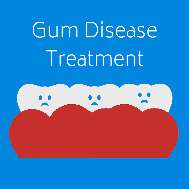 Gum Diseas Treatment at West Ridgewood Dental Professionals - Best Gum Disease Dentists in Bergen County New Jersey (18)