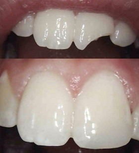 Chipped Tooth Repair Before and After Photos - West Ridgewood Dental Professionals - Top Cracked Tooth Repair Dentists in Bergen County.jpg