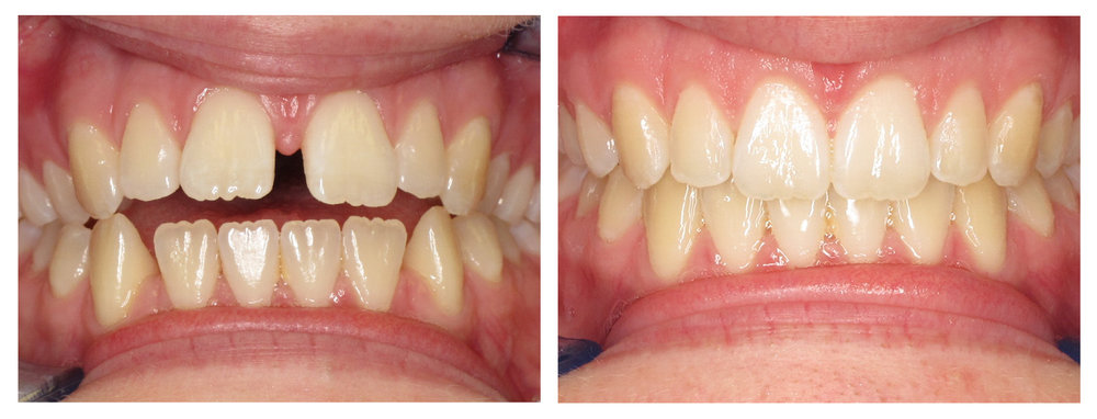 Before and After Invisalign Photos - West Ridgewood Dental Professional - Best Invisalign Dentists in Bergen County NJ.jpg