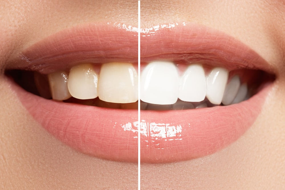 Get ZOOM! Teeth Whitening in Ridgewood New Jersey - Request an appointment today!