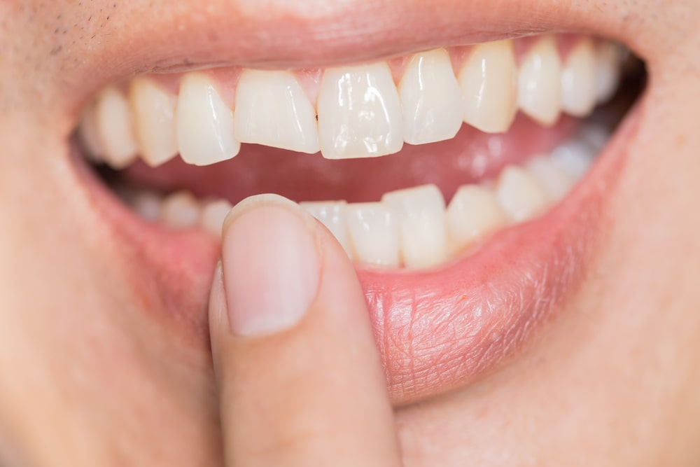 Looking to fix a cracked or chipped tooth in Ridgewood New Jersey? - Request an appointment today!