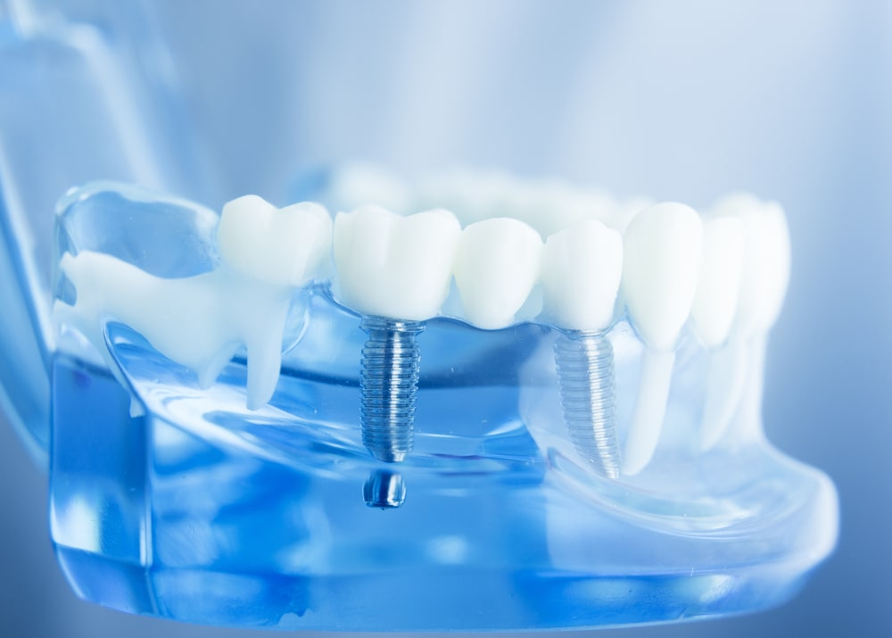 Looking for 5 Star Rated Dental Implant Dentists in Ridgewood New Jersey? - Request an appointment today!