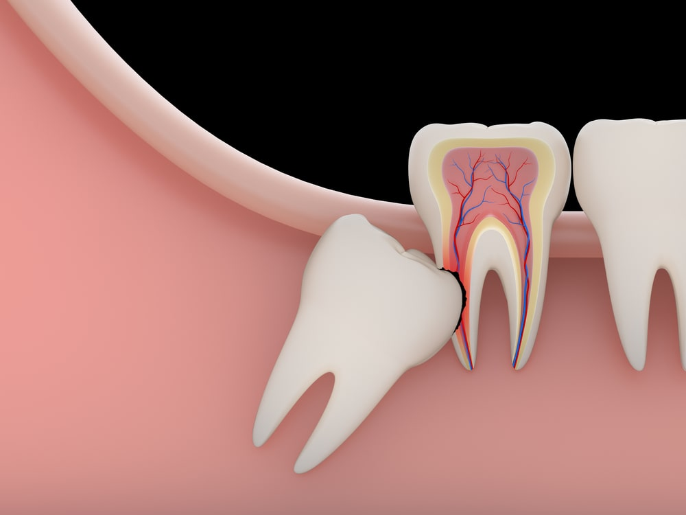 Looking for a Wisdom Tooth Extraction Dentists in Ridgewood New Jersey? - Not everyone needs their wisdom teeth removed, get an evaluation today!