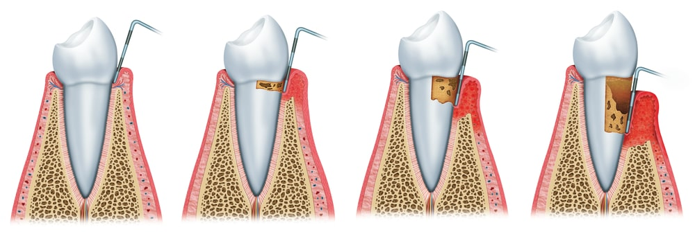 Looking for a Gum Disease Treatment in Ridgewood New Jersey? - Schedule an appointment today!