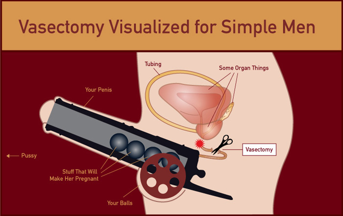 vasectomy.jpg