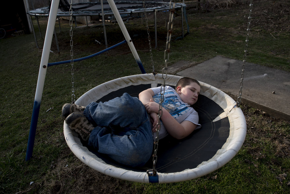 Nathan Trout rests in his back yard in Shade, Ohio on Feb. 6, 2017. Nathan was hit in the face with a hula hoop while playing with his cousin.