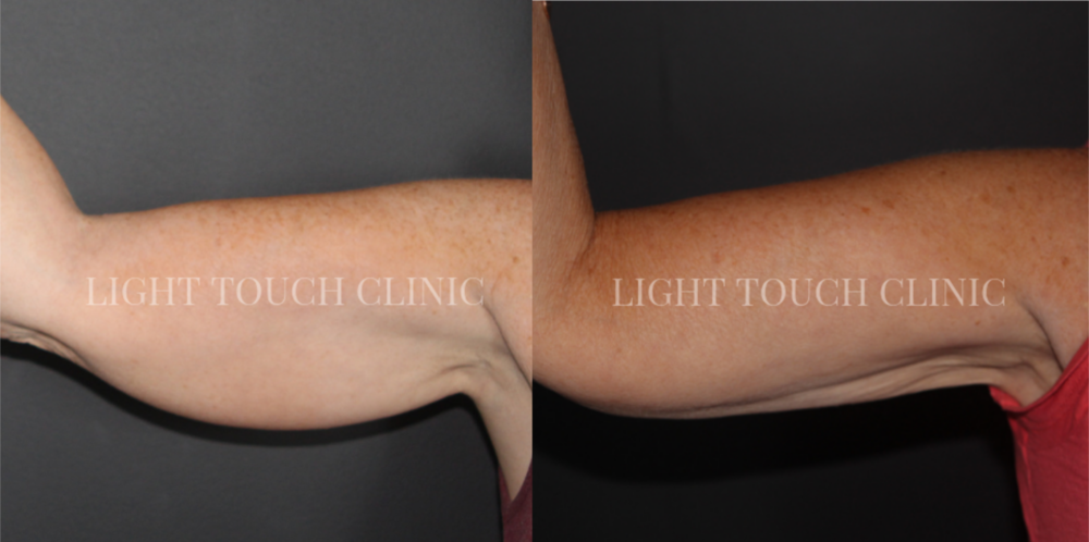 CoolSculpting At Light Touch Clinic Weybridge, Surrey London Fat Freezing.png