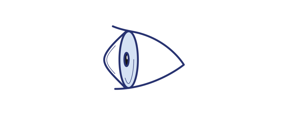 Icon illustrating keratoconus by Brisbane Ophthalmologist Dr David Gunn.