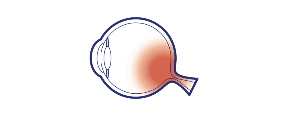 Icon illustrating glaucoma of the eye by Brisbane Ophthalmologist Dr David Gunn.