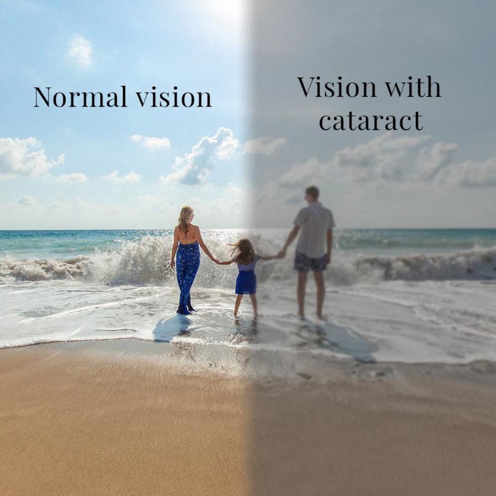 Cataract Vision Simulation for Dr David Gunn Ophthamologist Brisbane