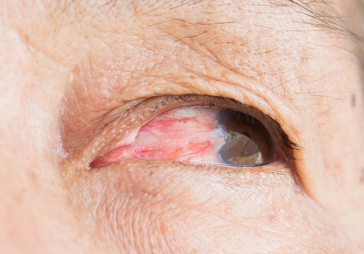 Example of Pterygium in patient's left eye.