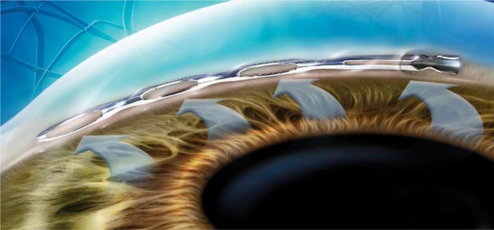 Close up view of hydrus in patient eye used in Glaucoma Surgery by Brisbane Ophthalmologist Dr David Gunn.