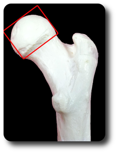Femoral-Head-Rounded.png
