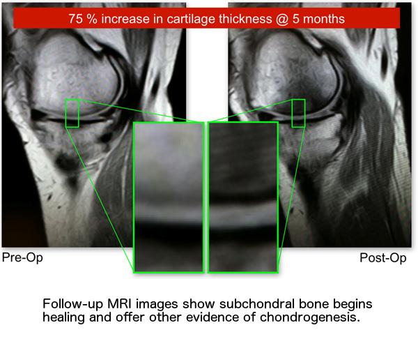 Pre-Op-Post-Op-MRI-Images.png