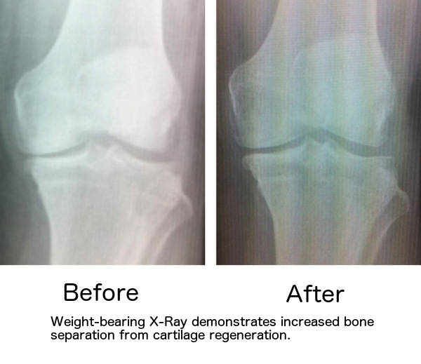 Before-After-ABT-X-rays1.png