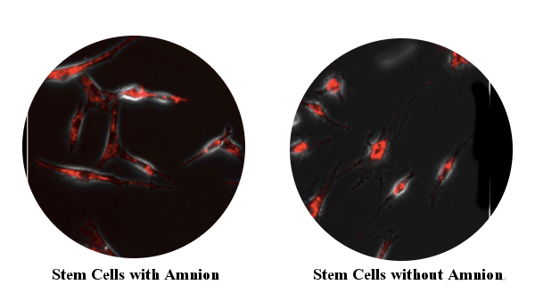 Cell-With-and-Without-AMNION.png