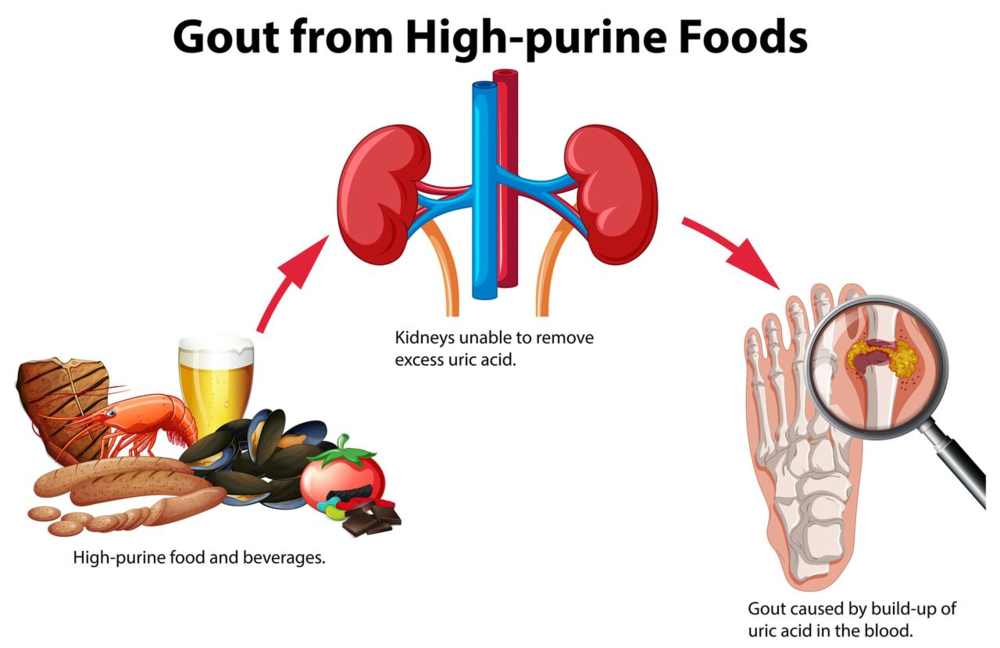 Gouty Arthritis - This is one example of 1000's of problems created by kidneys that are clogged.