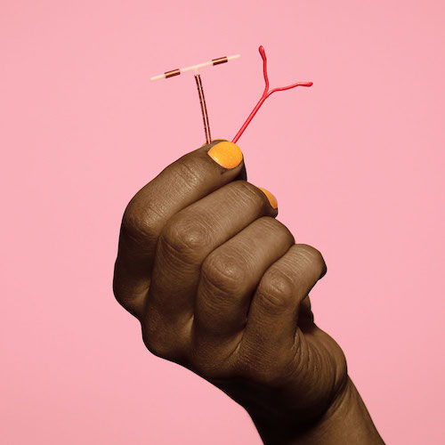 IUD - An IUD is t-shaped and made of plastic or copper. A doctor inserts into your uterus to prevent sperm from fertilizing an egg. After inserted, it sits up there and protects against pregnancy from 3 to 12 years, depending on the type. There are two types: hormonal and non-hormonal. It's easy to get, totally private - and you can have a doctor take it out anytime.