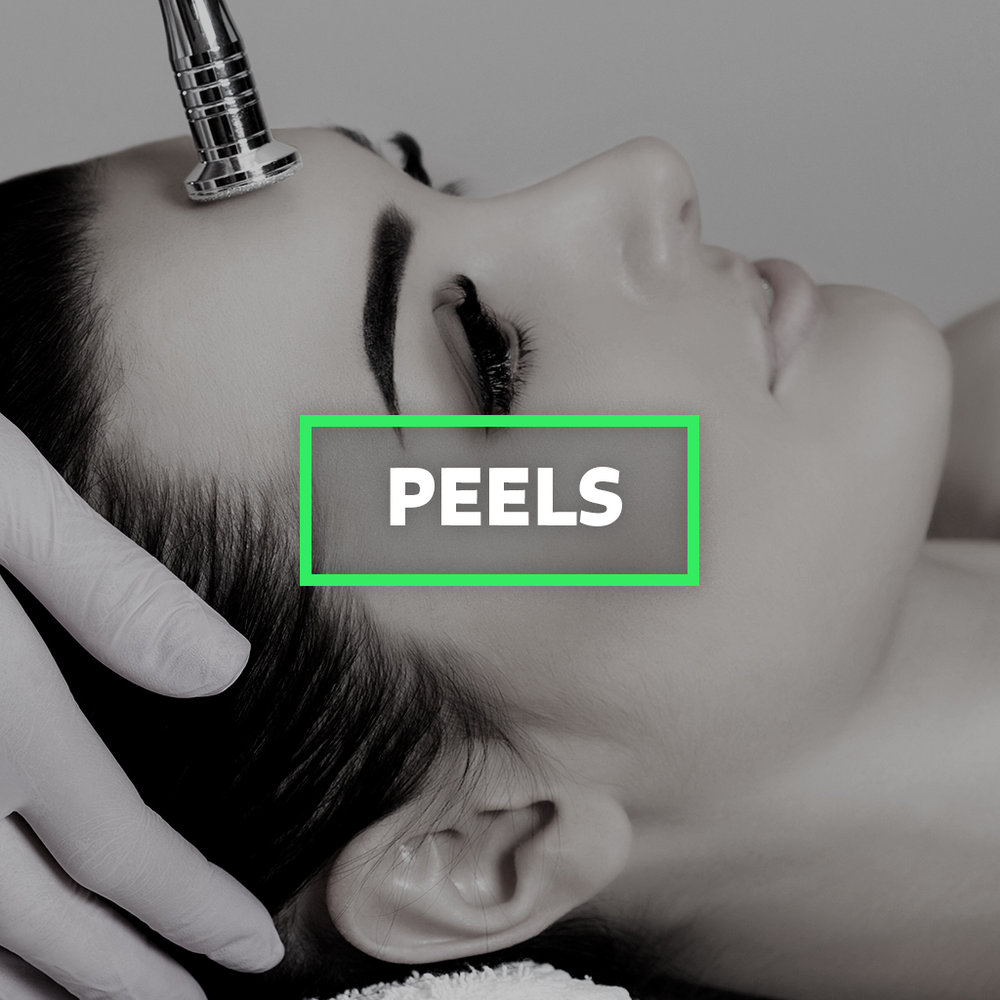 Peels.jpg
