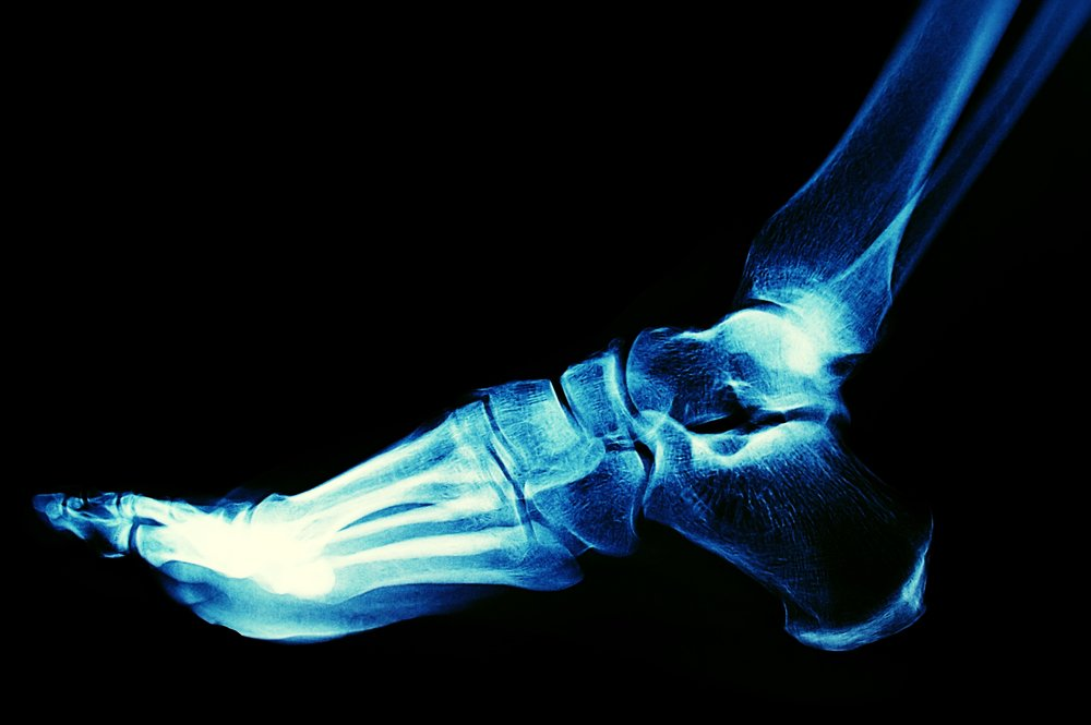 podiatrists treats foot and ankle fractures in new york city