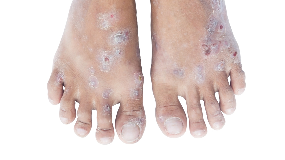 treatment for hand foot sydrome and pain relief managament