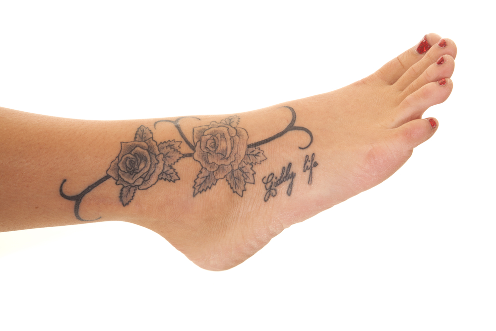 foot-tattoo-removed-with-laser-treatment-in-new-york-city-by-foot-doctor