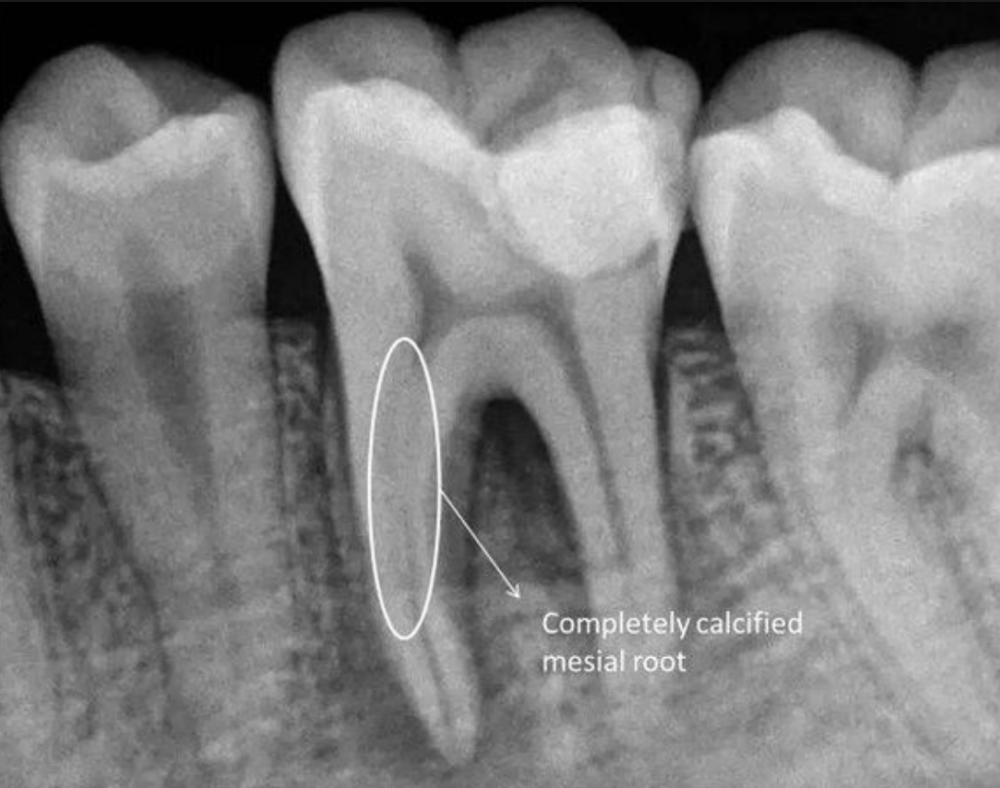 Screenshot 2018-10-16 22.14.47.png