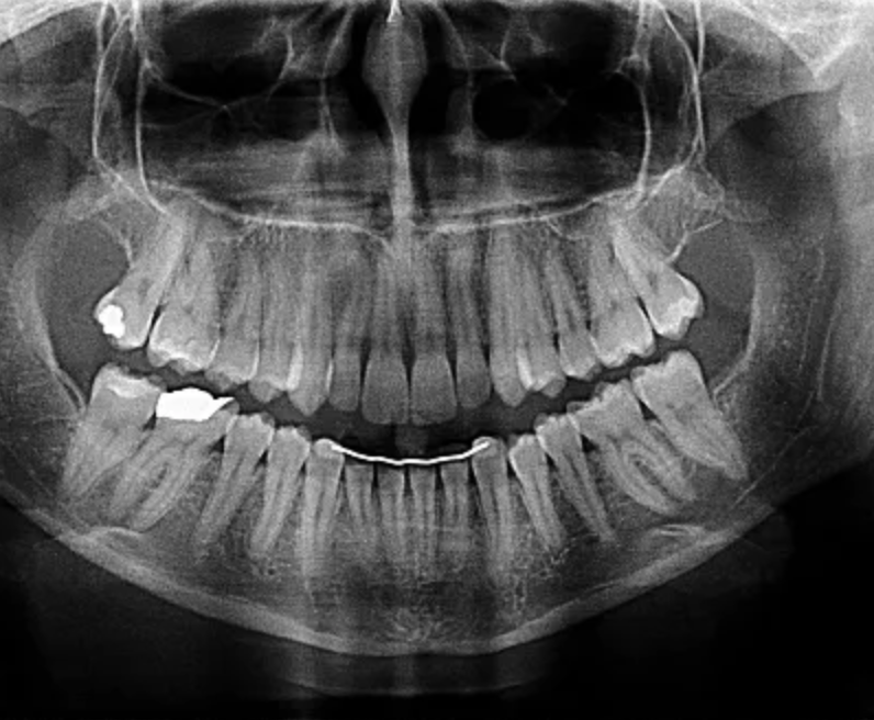Screenshot 2018-10-16 22.15.39.png