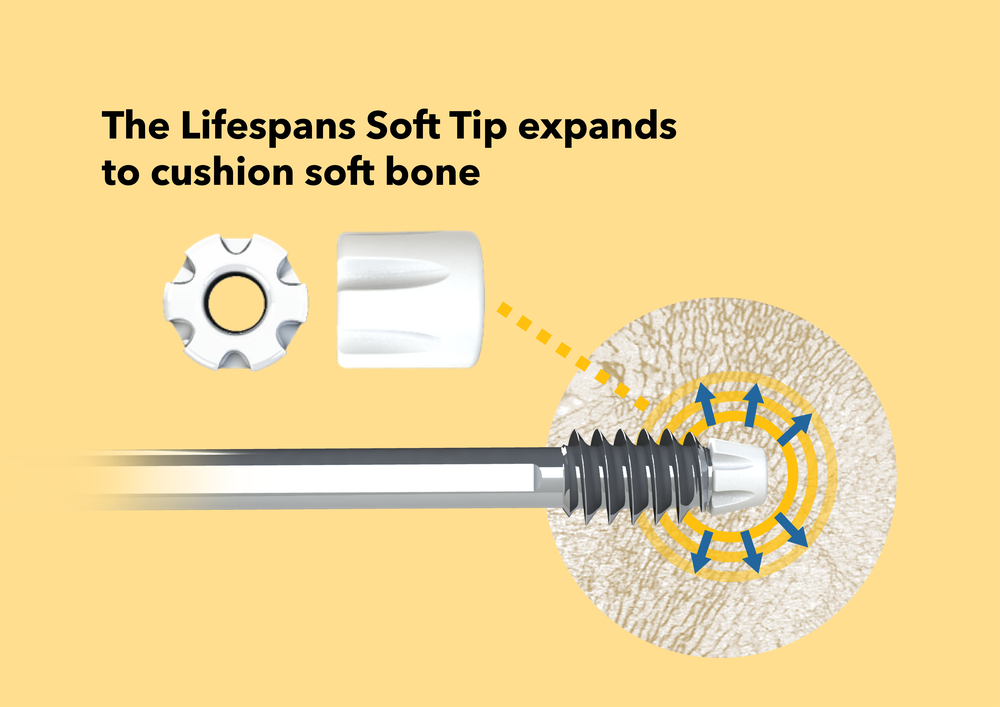 Lifespans Soft Tip* - A biocompatible polymer cushion for implant tips that reduces stress on soft bone tissue, resulting in up to 70% less migration vs. conventional screws from torque / oblique loading.**Used in the Lifespans Soft Hip* ImplantPatent-pending USA, EU, China, PCT