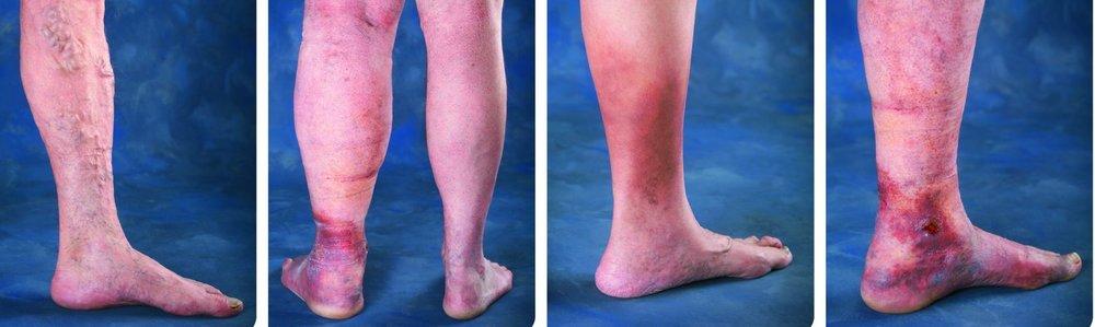 Venous Disease progression