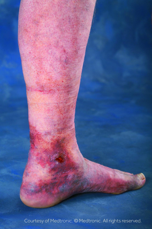 Lower Leg - Ulcer
