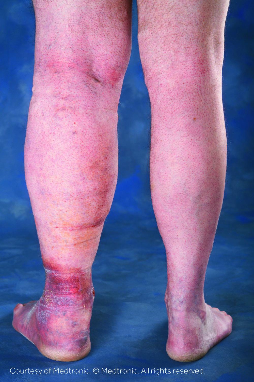 Lower Leg - Swelling