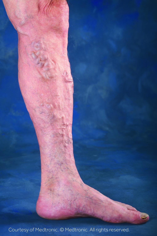 Lower Leg - Varicose Veins