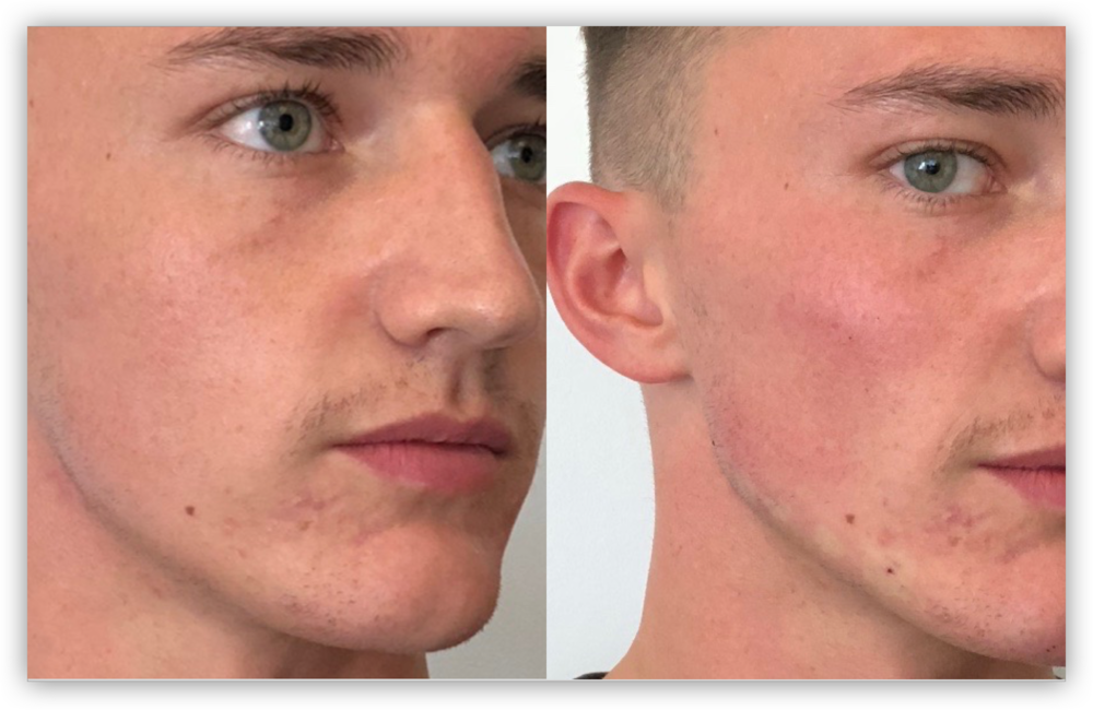 Male Jawline Enhancement