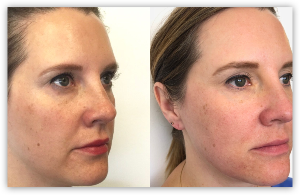Fraxel Laser Treatment for Skin Tightening