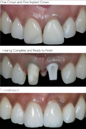 dental-implants-before-and-after.jpg