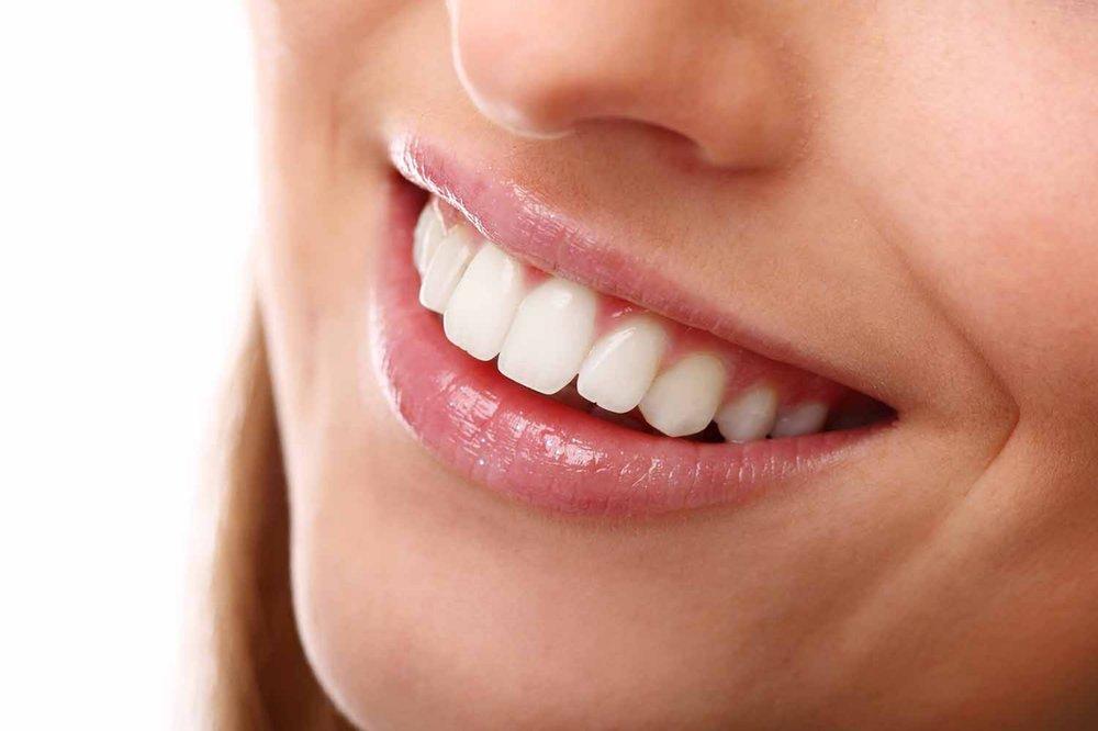 beautiful-smile-perfect-teeth-1500-x-1000.jpg