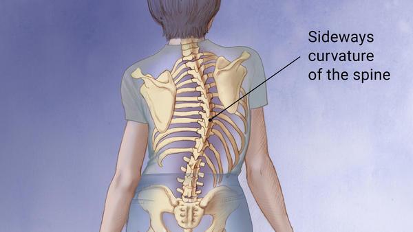 Scoliosis Pain Treatment Chiropractor Orem Utah