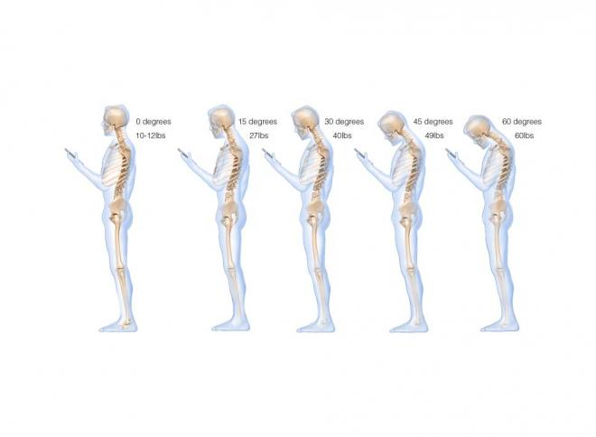 orem chiropractor texting neck pain posture