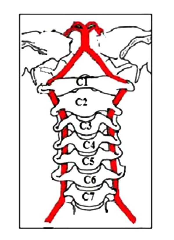 orem chiropractor neck storke