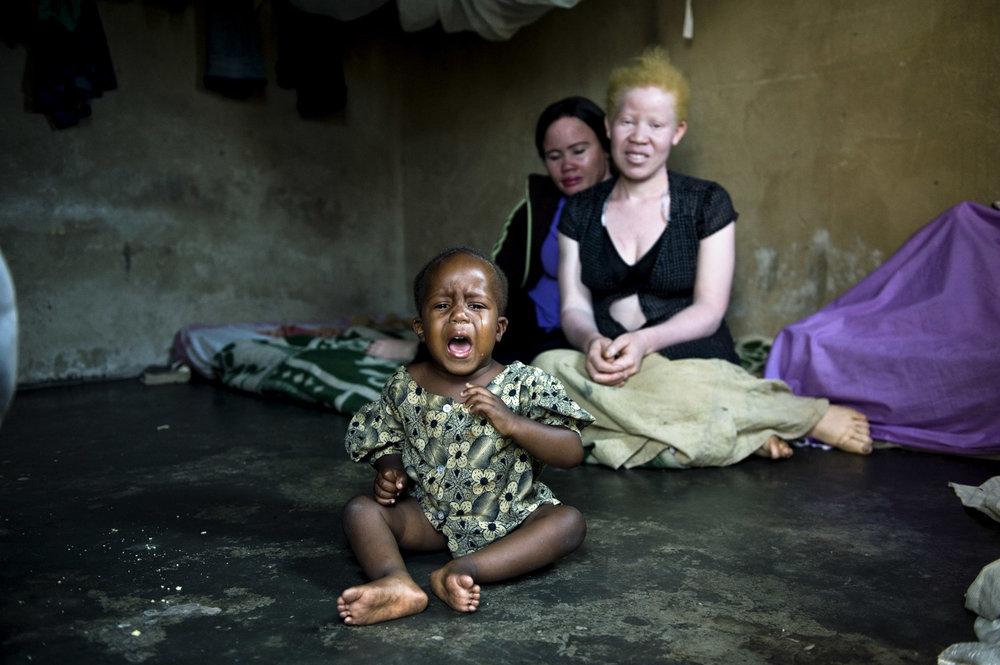 albinos_01.jpg