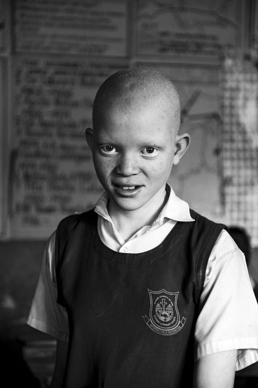 albinos_04.jpg